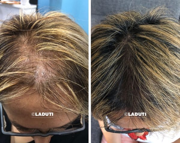 Laduti-Haarwuchsmittel