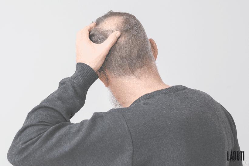 Haarausfall-Hinterkopf