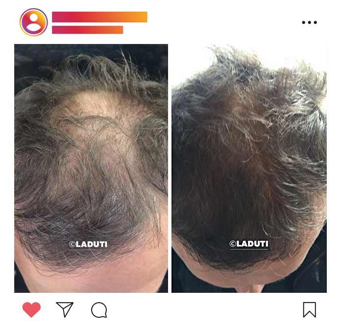 Haarwuchsmittel-Test